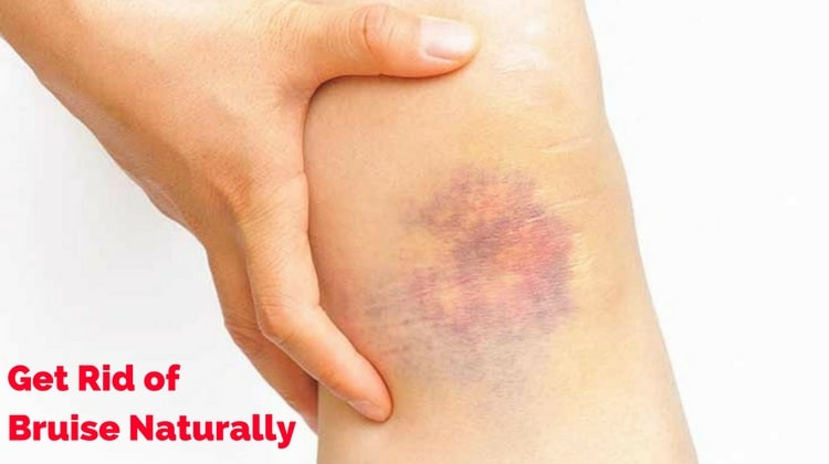 Home Remedies to Get Rid of Bruise Naturally