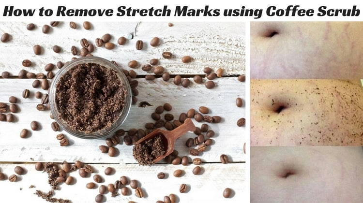 How to treat Stretch Marks using Coffee Scrub