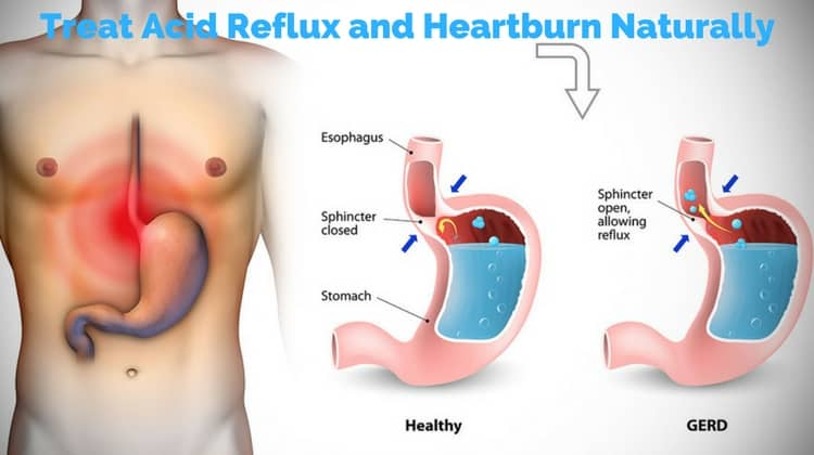 How To Treat Heartburn Naturally At Home