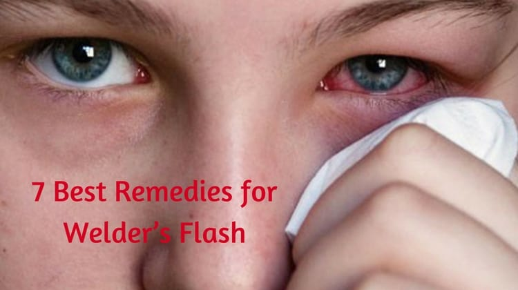 7 Best Remedies for Welder's Flash