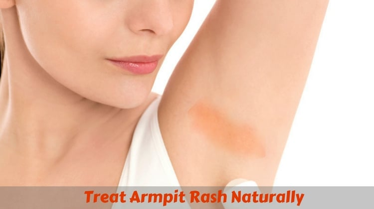 Best Remedies to Treat Armpit Rash Naturally