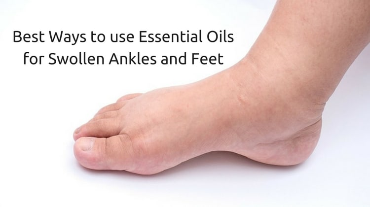 Best Ways to use Essential Oils for Swollen Ankles and Feet