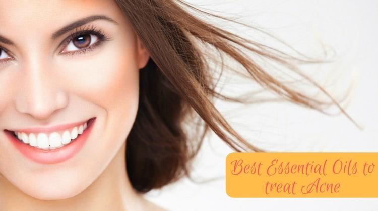 Essential Oils to treat Acne