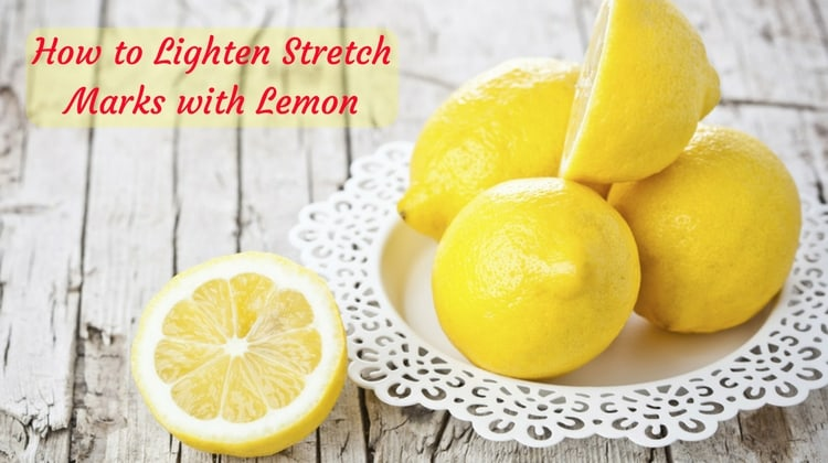 How to use Lemon for Treating Stretch Marks