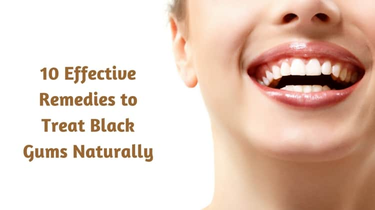 10 Effective Remedies to Treat Black Gums Naturally