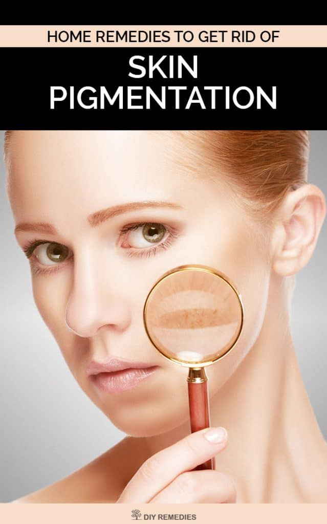 Home Remedies to Get Rid of Skin Pigmentation