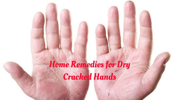 Best Natural Remedies For Dry Cracked Hands