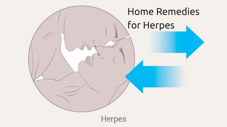 7 Effective Remedies to Get Rid of Herpes