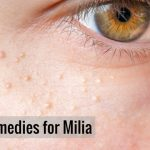13 Best Ways to get rid of Milia Naturally