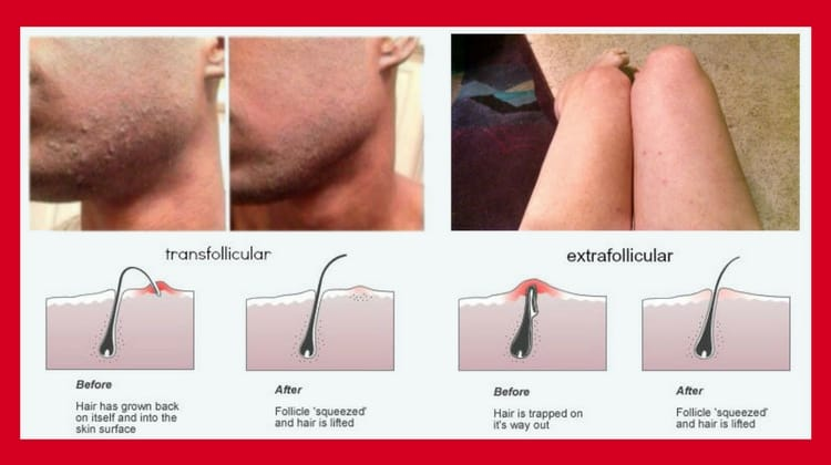 How To Get Rid Of Razor Bumps Quickly