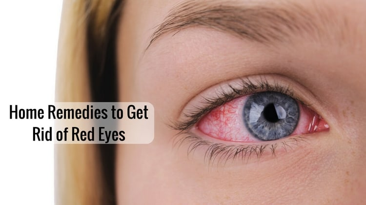 Home Remedies to Get Rid of Red Eyes