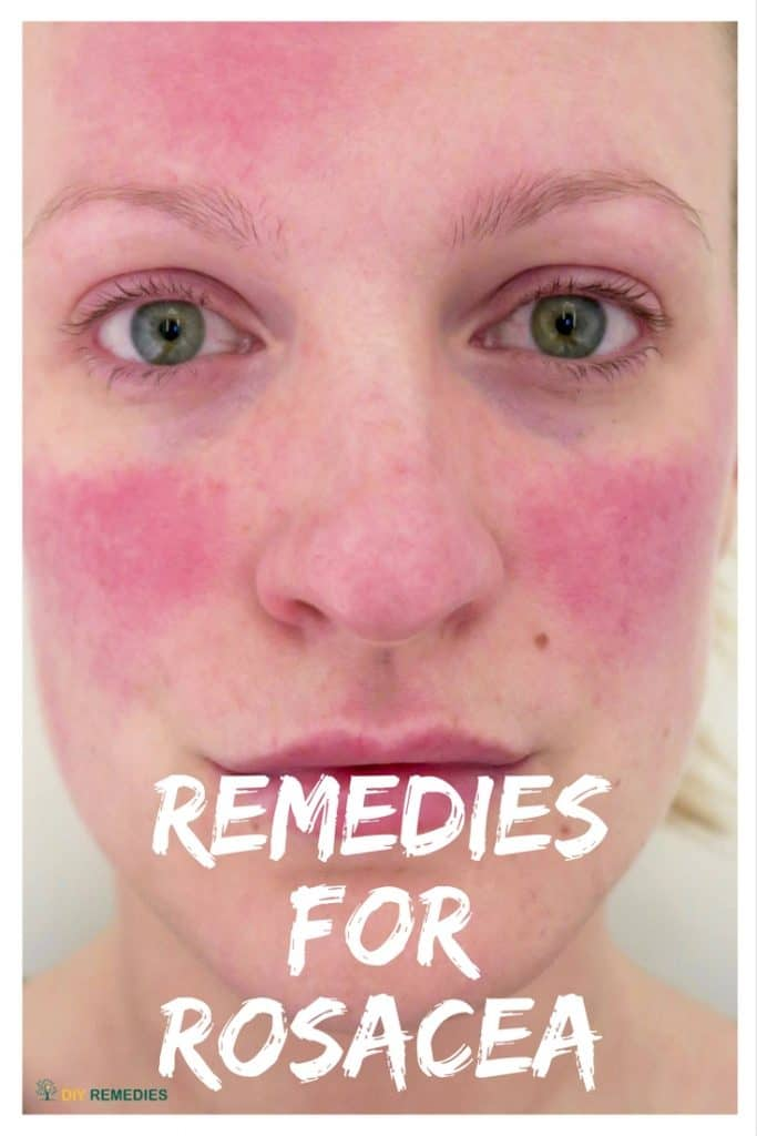 Best Remedies to Treat Rosacea Naturally