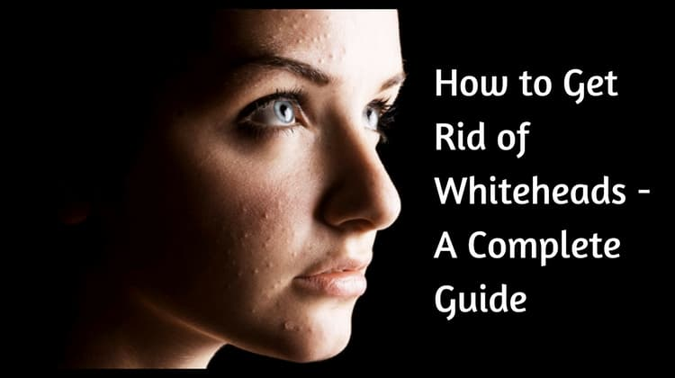 How to Get Rid of Whiteheads – A Complete Guide