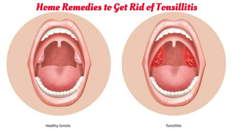 Home Remedies to Get Rid of Tonsillitis