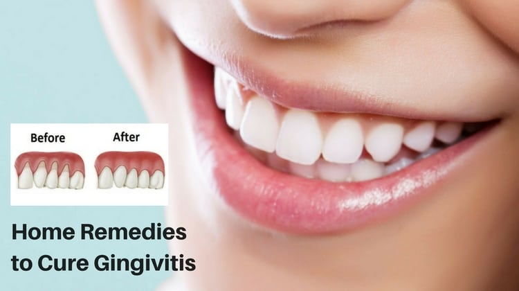 10 Home Remedies to Cure Gingivitis