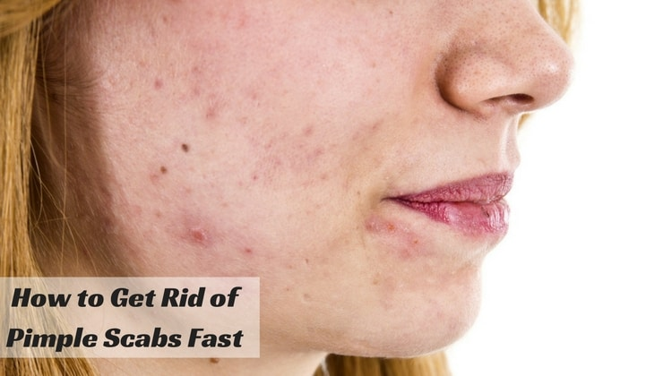 How to Get Rid of Acne/Pimple Scabs Fast