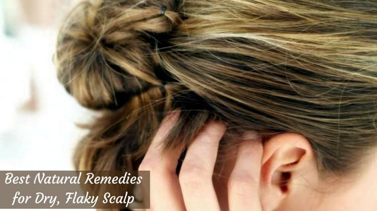 10 Best Natural Remedies for Dry, Flaky Scalp