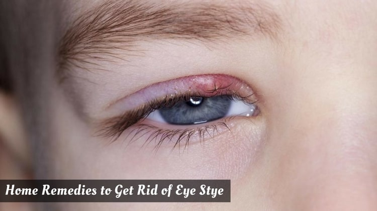 Home Remedies to Get Rid of Eye Stye