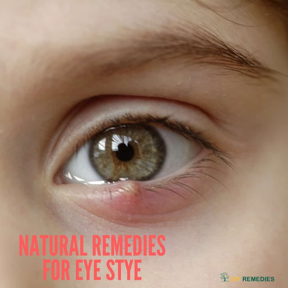 Natural Remedies for Eye Stye