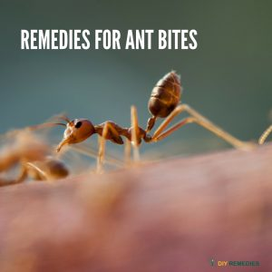 12 Effective Home Remedies for Ant Bites