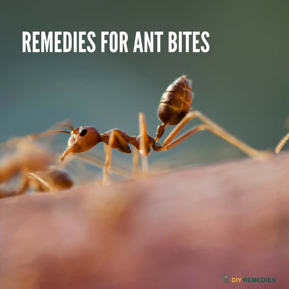 Remedies for Ant Bites
