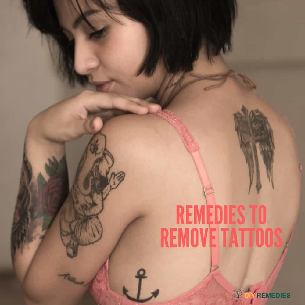 Remedies to Remove Tattoos
