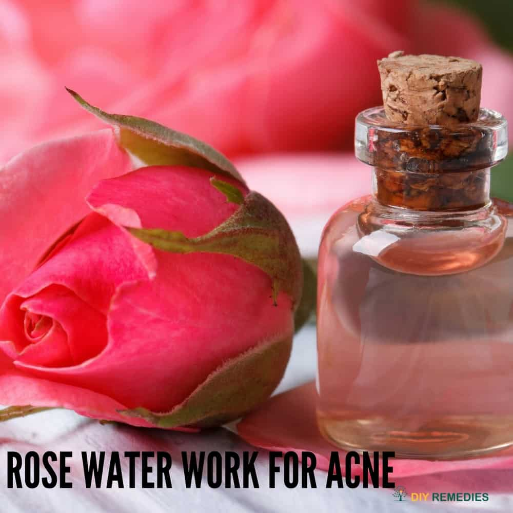 Rose Water Work for Acne