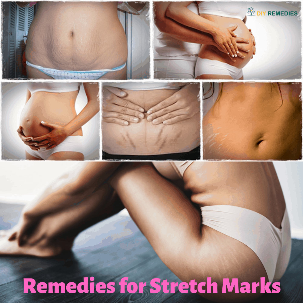 DIY Remedies for Stretch Marks